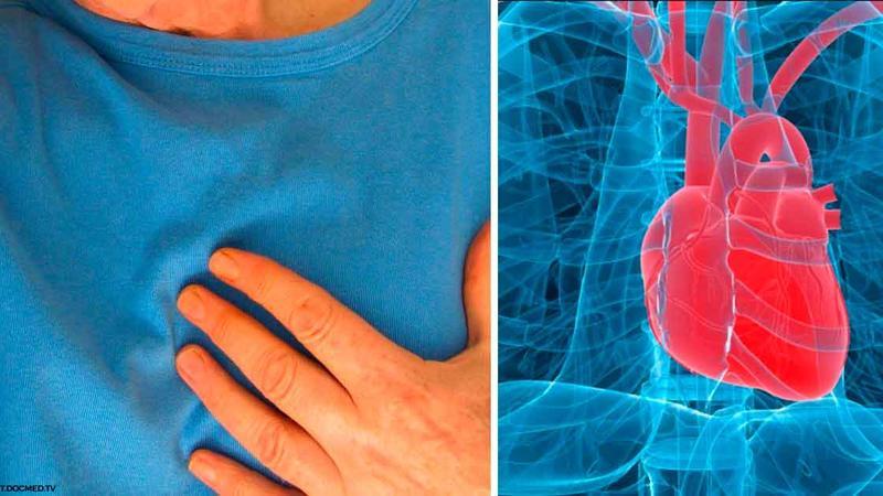 Ürək dayanması haqqında 10 fakt